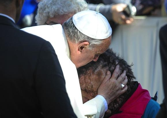 POPE KISSES FACE OF POOR MAN